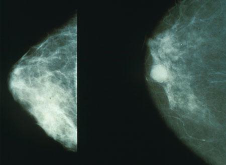 Prise en Charge de l'Oncologie Gynécologique et Mammaire